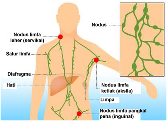 Biological Response Modifier Therapy untuk Kanser Limfoma