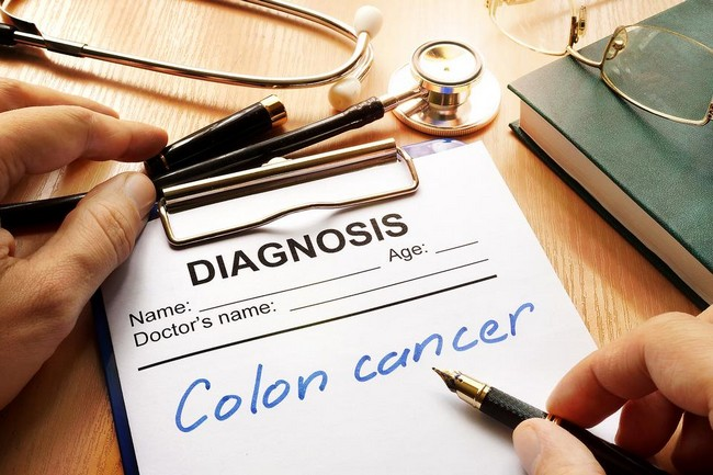 For know the Identify Colon Cancer Signs