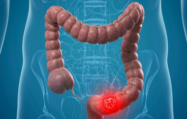 This Identify Colon Cancer Signs