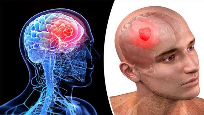 The Brain Cancer Signs