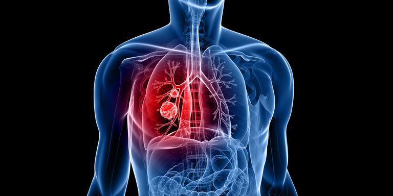 Complications of Lung Cancer You Need To Know