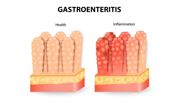 Gastroenteritis is You Should Get Medical Card Insurance
