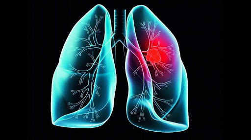 Ways to Avoid Lung Cancer In Life