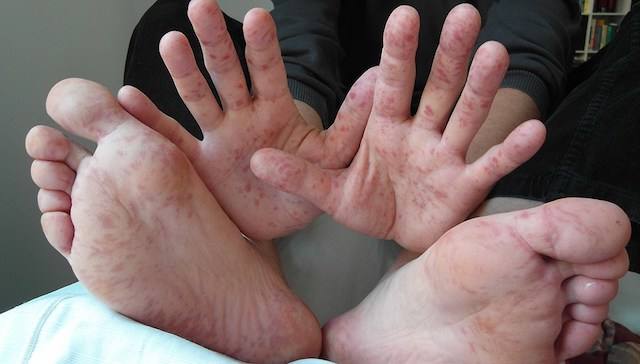 Hand Foot Mouth Disease As Rash
