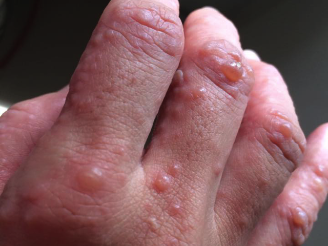 Hand Foot Mouth Disease Treatment