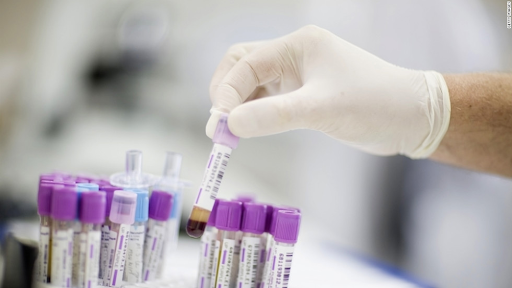 How to Minimize the Risk of Cancer As Do Cancer Screening Test