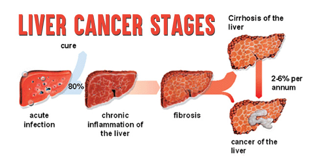 Most Diagnosed Cancer In Malaysia As Liver Cancer