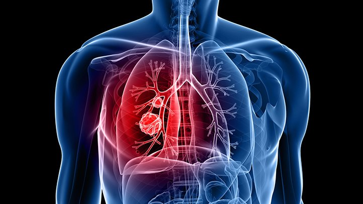 Most Diagnosed Cancer In Malaysia As Lung Cancer