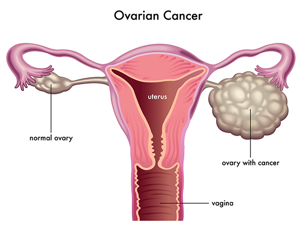 Most Diagnosed Cancer In Malaysia As Ovary