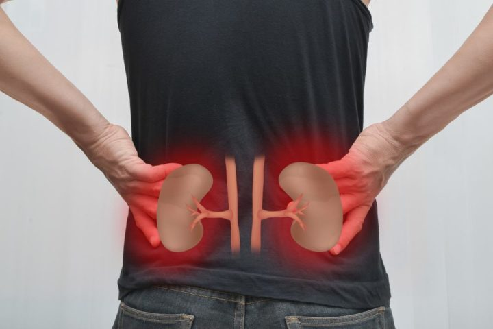 Things You Need To Know About Kidney Stones As Struvite