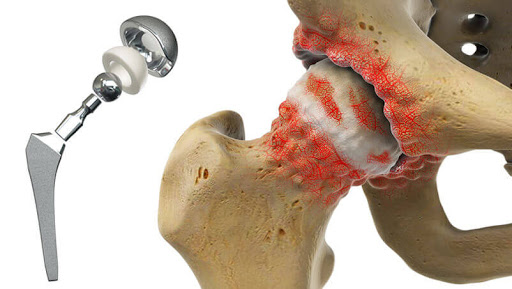 Why Surgery Is Expensive As Surgical Implants